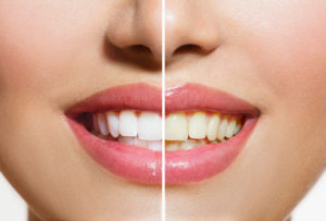 teeth whitening, What You Need to Know About Teeth Whitening, Smile Logic, Inc.