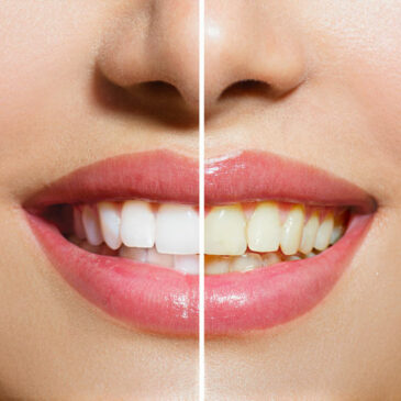 Smilelogic teeth whitening
